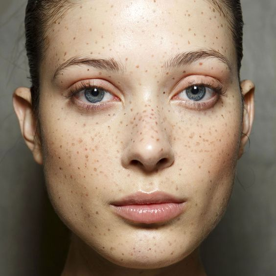 How to Draw On Freckles That Don't Look Fake
