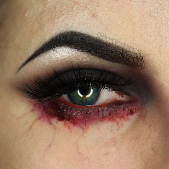 red-eye-lids via
