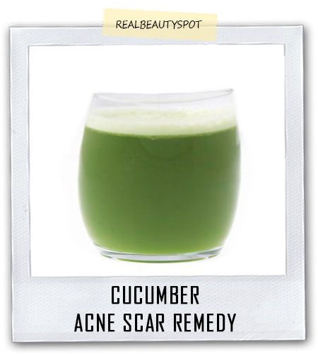 How to Eliminate Acne Scars